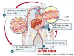 Ảnh 1 của Đề kháng insulin