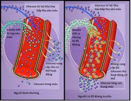 Ảnh 2 của Đề kháng insulin