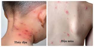Ảnh 1 của Bệnh đậu mùa