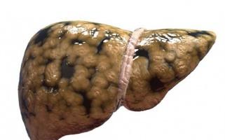 Khỏi bệnh gan nhiễm mỡ nhờ chế độ ăn uống và lối sống lành mạnh