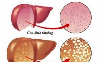 Các phương pháp đánh giá mức độ bệnh gan nhiễm mỡ