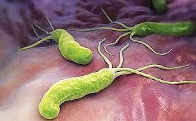 Nhiễm vi khuẩn Helicobacter pylori: Chẩn đoán và điều trị