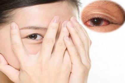 Viêm giác mạc: Nguyên nhân, triệu chứng, cách phòng tránh