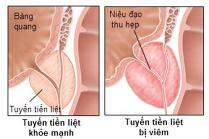 Dấu hiệu của bệnh viêm tiền liệt tuyến ở nam giới