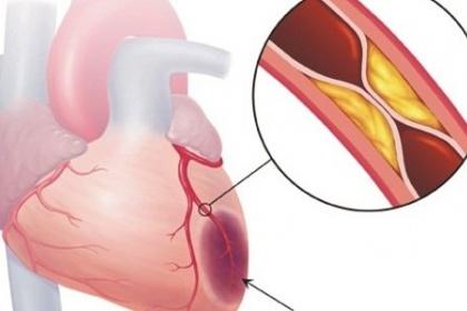 Chụp mạch vành - Trong Chẩn đoán và điều trị bệnh mạch vành