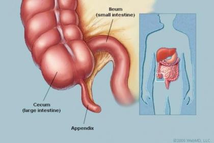 Viêm ruột thừa cấp những điều cần biết