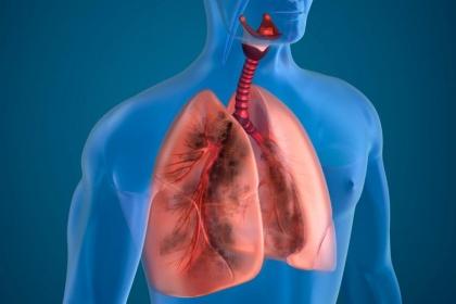 Những xét nghiệm giúp phát hiện bệnh phổi tắc nghẽn mãn tính