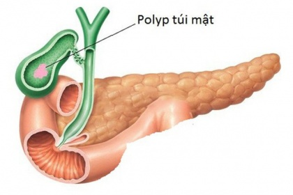 Polyp túi mật là bệnh gì, Triệu chứng và có cần phải điều trị không?