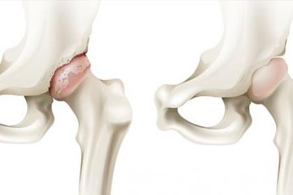 Các biện pháp điều trị hoại tử (tiêu) chỏm xương đùi nặng