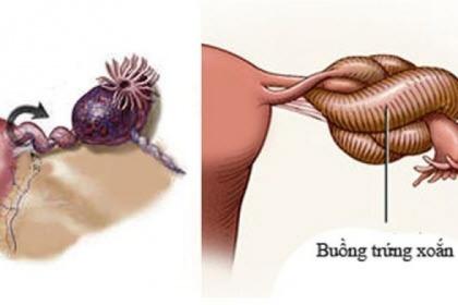 U nang buồng trứng xoắn là bệnh gì, có nguy hiểm không?