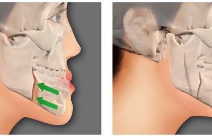 Gãy xương hàm mặt các phương pháp điều trị