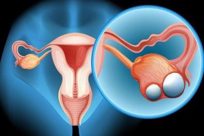 Mổ nội soi cho bệnh nhân ung thư buồng trứng giai đoạn sớm