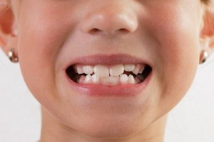 Chỉnh sửa xương hàm để chữa dứt điểm lệch khớp cắn