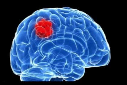 Triệu chứng bệnh u não và cách điều trị