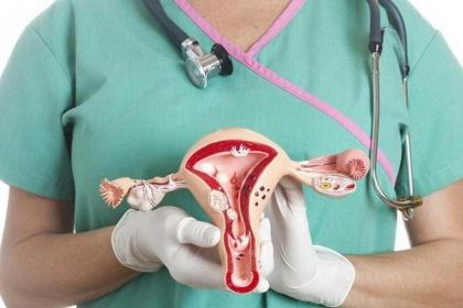 Ung thư buồng trứng: Hóa trị trong phúc mạc hay hóa trị toàn thân?