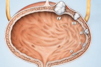 Dấu hiệu và triệu chứng phát hiện sớm ung thư bàng quang ?