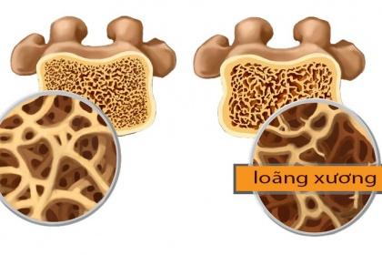 Đo mật độ xương để phát hiện nguy cơ loãng xương