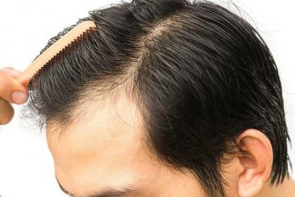 Cấy tóc: Những điều cần biết