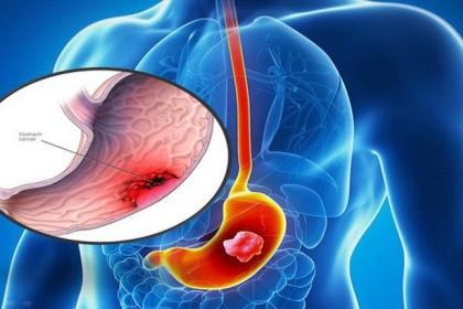Hiệu quả của hóa trị trong điều trị ung thư dạ dày