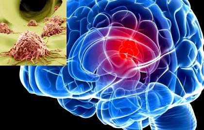 Ung thư di căn có sử dụng liệu pháp miễn dịch tự thân được không?