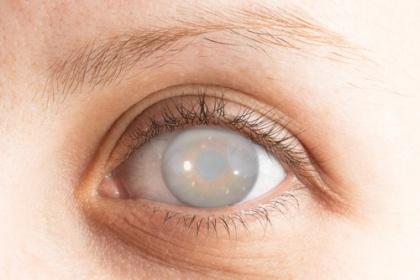 Bệnh đục thủy tinh thể có thể gây mù lòa - Cần phát hiện sớm để điều trị