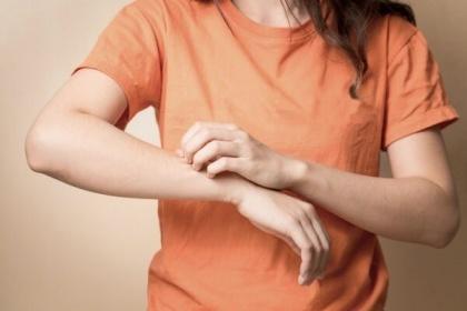 Sốt xuất huyết bị ngứa, mẩn đỏ ngoài da là bình thường hay bất thường?