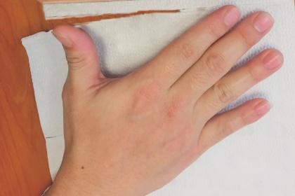 Nội soi cắt chuỗi hạch giao cảm