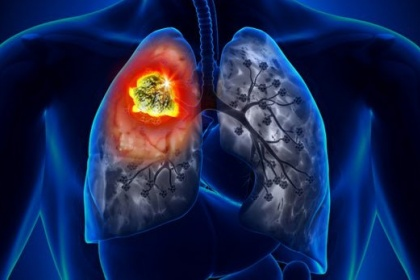 Ung thư phổi: Nguyên nhân, triệu chứng