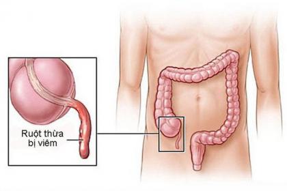 Chẩn đoán và điều trị viêm ruột thừa cấp