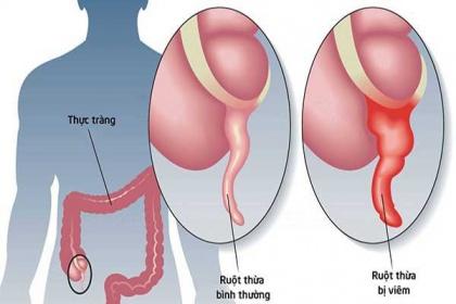 Biến chứng nguy hiểm của viêm ruột thừa cấp