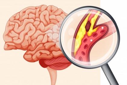 Sự hình thành cục máu đông trong tai biến mạch máu não