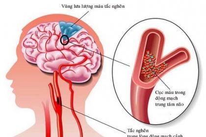 Thuốc tiêu sợi huyết Điều trị nhồi máu não