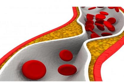 Hẹp mạch vành dễ dẫn đến nhồi máu cơ tim