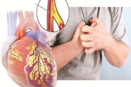 Hẹp mạch vành: Khi nào dùng thuốc, khi nào đặt stent, khi nào phải mổ?