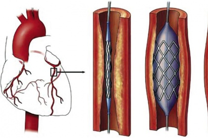 Nong mạch vành và đặt stent: Chỉ định, quy trình thực hiện, biến chứng có thể xảy ra