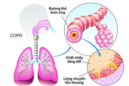Bệnh phổi tắc nghẽn mãn tính có phải là hen suyễn do hút thuốc lá?