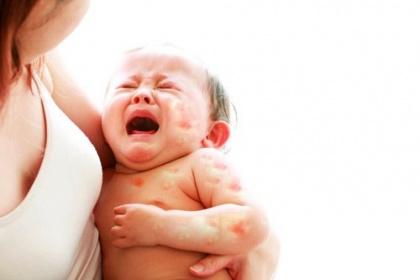 Trẻ bị dị ứng sữa là gì? - Nguyên nhân, dấu hiệu nhận biết và cách xử lý