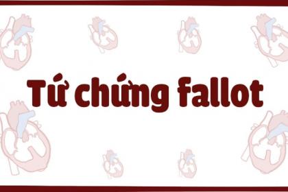 Tứ chứng Fallot là bệnh gì? có Triệu chứng như thế nào?