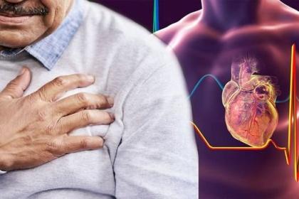 Viêm màng ngoài tim cấp - Chẩn đoán và điều trị