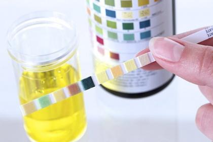 Ý nghĩa Chỉ số PH trong xét nghiệm nước tiểu