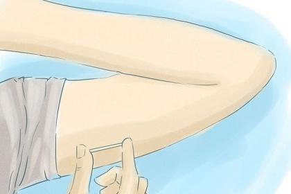 Đối tượng thích hợp để sử dụng que cấy tránh thai Implanon
