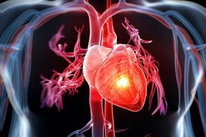 Phân suất dự trữ lưu lượng động mạch vành (FFR) trong điều trị bệnh lý mạch vành
