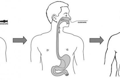 Nội soi dạ dày đường mũi thực hiện thế nào?