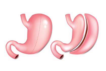 Phẫu thuật cắt dạ dày để giảm cân