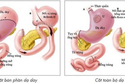 Cắt dạ dày được chỉ định trong trường hợp nào?