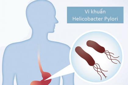 Vi khuẩn HP khi nào sẽ gây ung thư dạ dày?