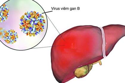 Điều trị bệnh viêm gan B theo từng trường hợp cụ thể