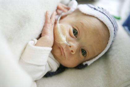 Theo dõi khi nuôi dinh dưỡng qua ống thông dạ dày ở trẻ sơ sinh