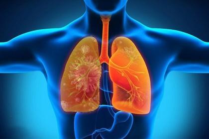 Những điều cần biết về bệnh viêm phổi hít