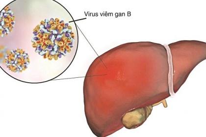 Những điều cần biết khi sử dụng thuốc kháng virus viêm gan B